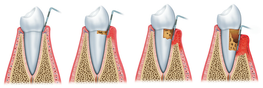 Watch periodontal disease!
